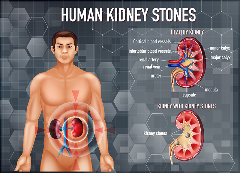 Best Kidney Stone specialist in Pune