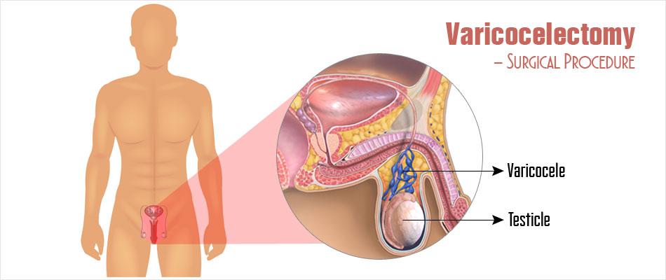 Varicocele Surgery in Pune