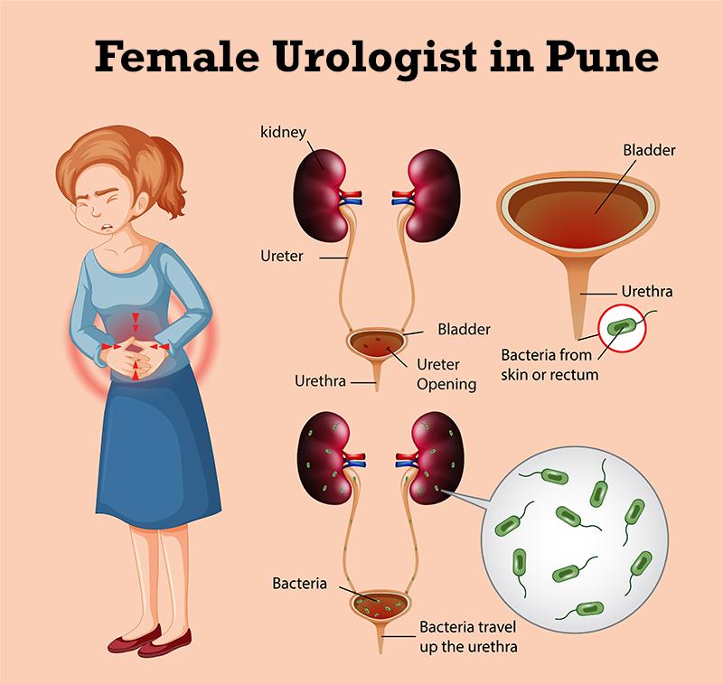 Best Female Urologist in Pune