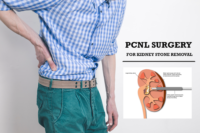 Best PCNL Surgery for Kideny Stone Removal in Pune