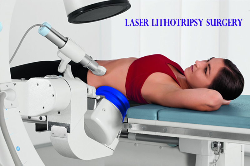 laser kidney stone surgery in pune