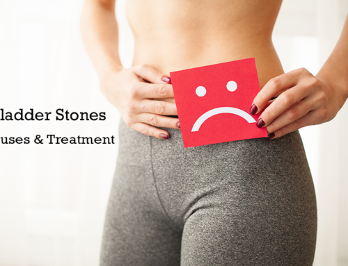 What Are Bladder Stones? Causes and treatment