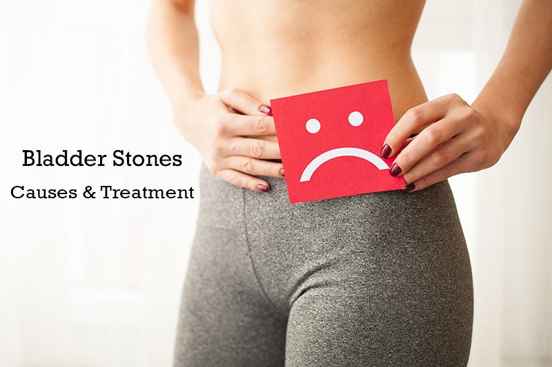 bladder stone treatment in hadapsar