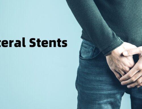 Ureteral Stents – Symptoms